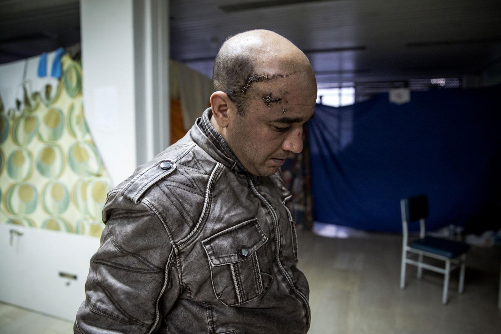 """Nabi Ab Almazi, dari Aljazair, diserang oleh lima orang di Yunani. Riwayat medisnya, yang diterbitkan di Idomeni, menyatakan 'Riwayat: dipukuli oleh """"ekstrimis"""", lupa detail kejadiannya."""""""